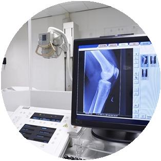 Minimally Invasive Surgery – Knee